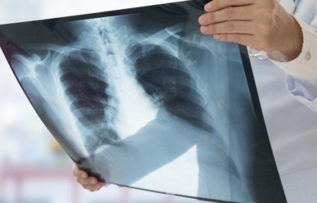 כל הדרכים הטבעיות להקל על דלקת-ריאות